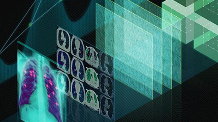 Si kanë ndikuar kartat grafike në hulumtimin dhe zhvillimin e barnave mjekësore në industrinë farmaceutike