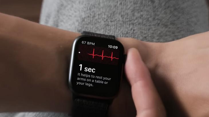 Studimi tregon se Apple Watch mund të identifikojë sëmundjet e zemrës